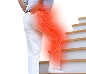 Sėdimojo nervo skausmas