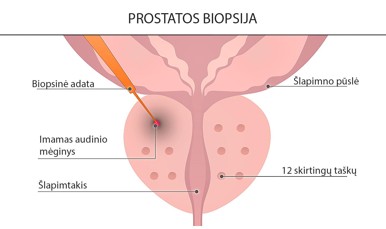 Prostatos biopsijos tyrimas