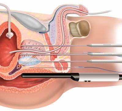 Transperinealinė prostatos biopsija