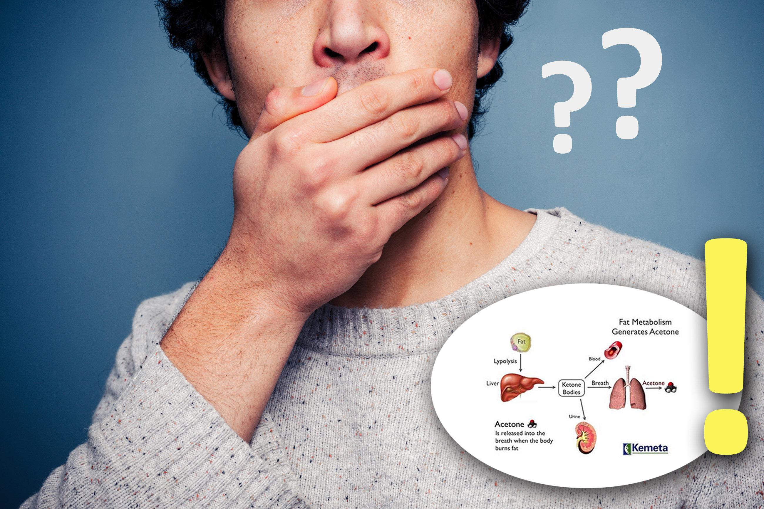 Acetono kvapas iš burnos