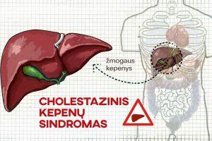 Choleostazinis kepenų sindromas