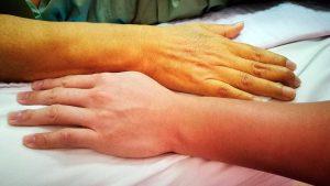 Odos gelta (pacientas)